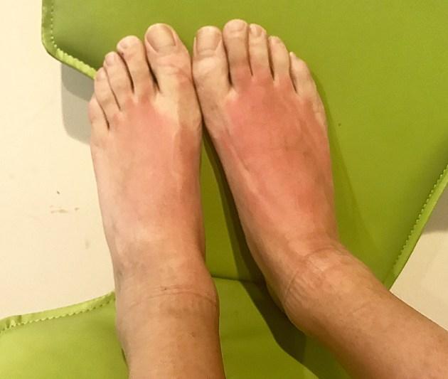 Tony Ps burned feet